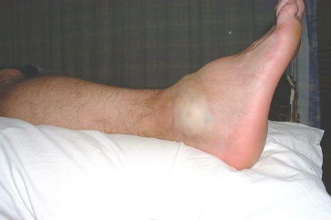Острый бурсит голеностопного сустава проявляется сильной отечностью