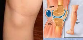 Обязательно ли откачивать жидкость из коленного сустава