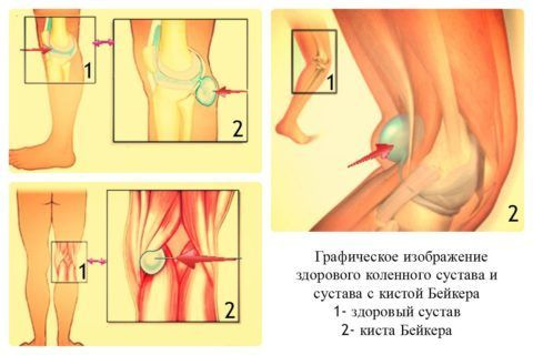 Отличия здорового колена и колена с кистой