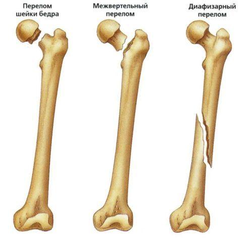 Перелом головки тазобедренного сустава и прочие виды переломов