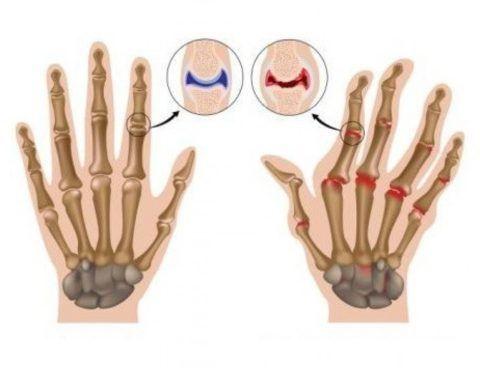 Тело не срезу реагирует на болезнь: первым симптомом полиартрита может быть скрипящий хруст в сочленениях кисти