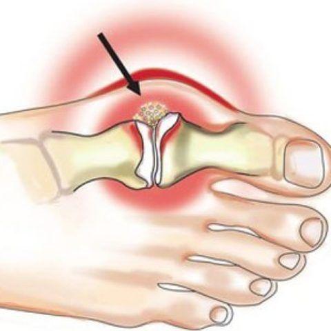 Подагра чаще всего поражает мелкие суставы