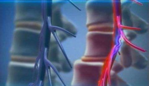 Подвывих позвонка шеи – серьезная травма