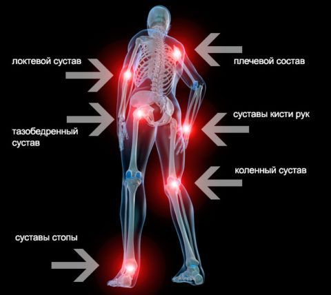 Полиартрит обычно возникает вследствие системного заболевания и поражает несколько сочленений