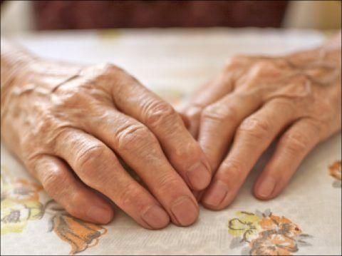 Поражение суставов пальцев рук — самая частая патология среди артрозов