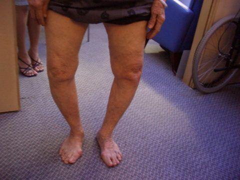 Последняя стадия заболевания характеризуется сильной деформацией сустава