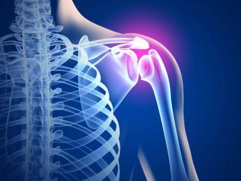 При артрозе плеча быстро развивается ограничение движений