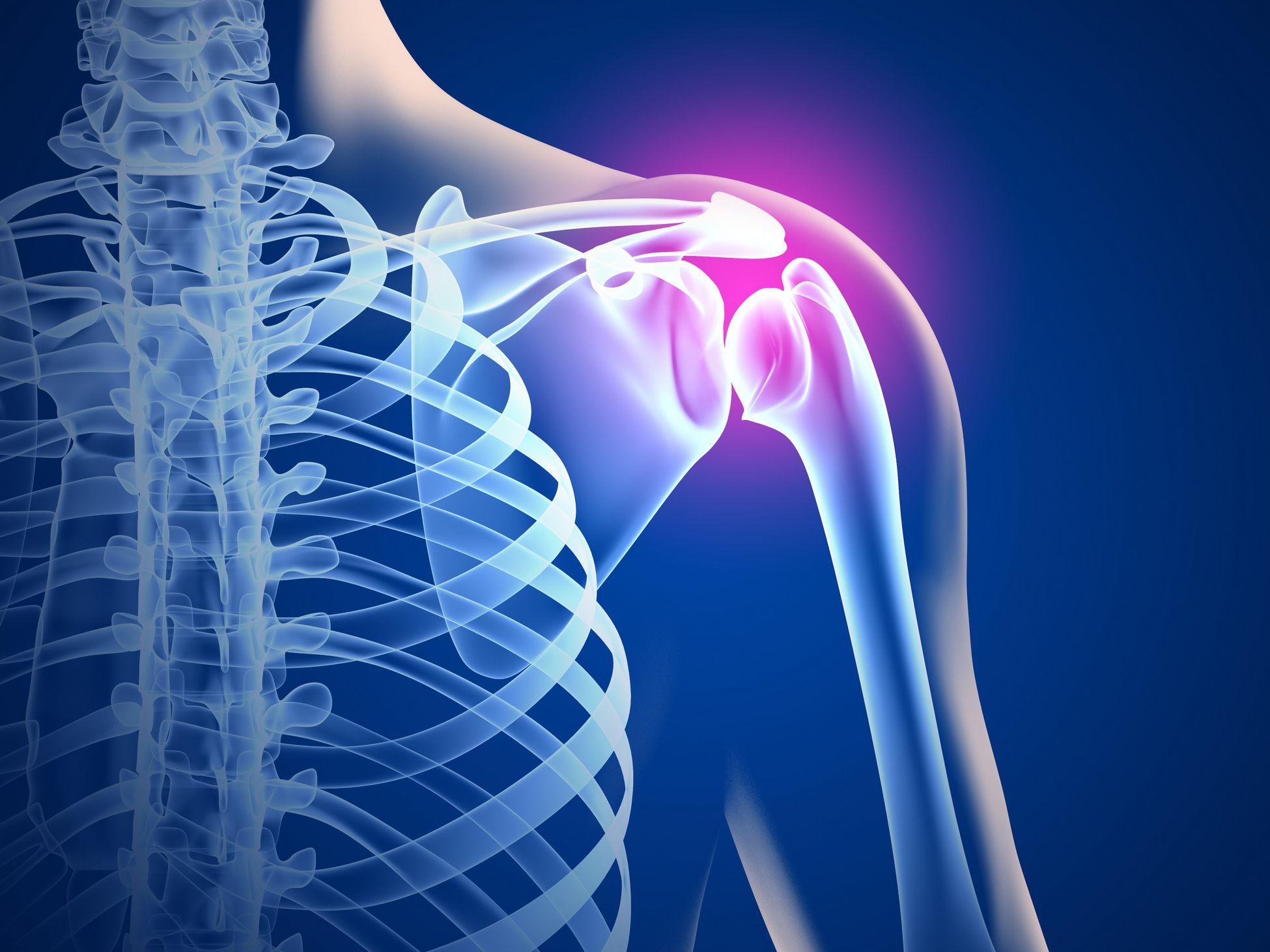 Артроз плечевого сустава: симптомы и лечение — берем ситуацию в свои руки