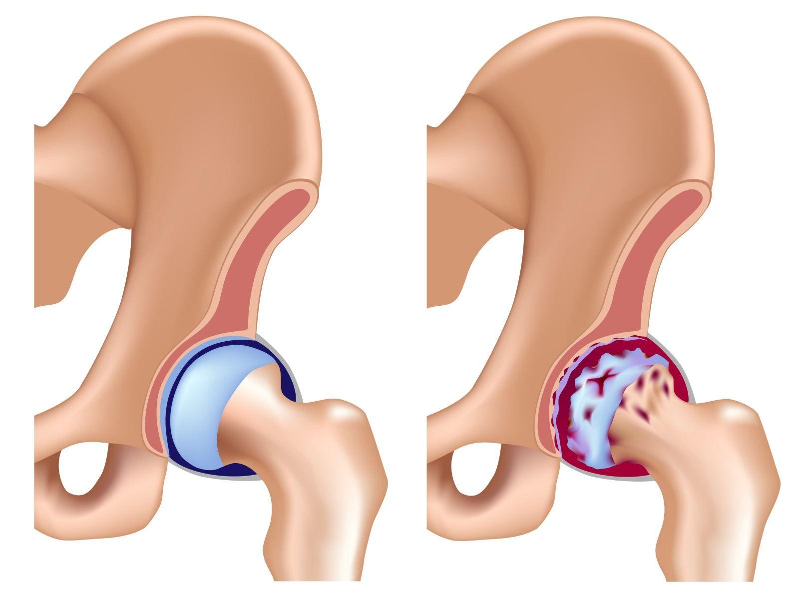 Артроз тазобедренного сустава — механизм развития патологии, основные проявления по стадиям, методы лечения