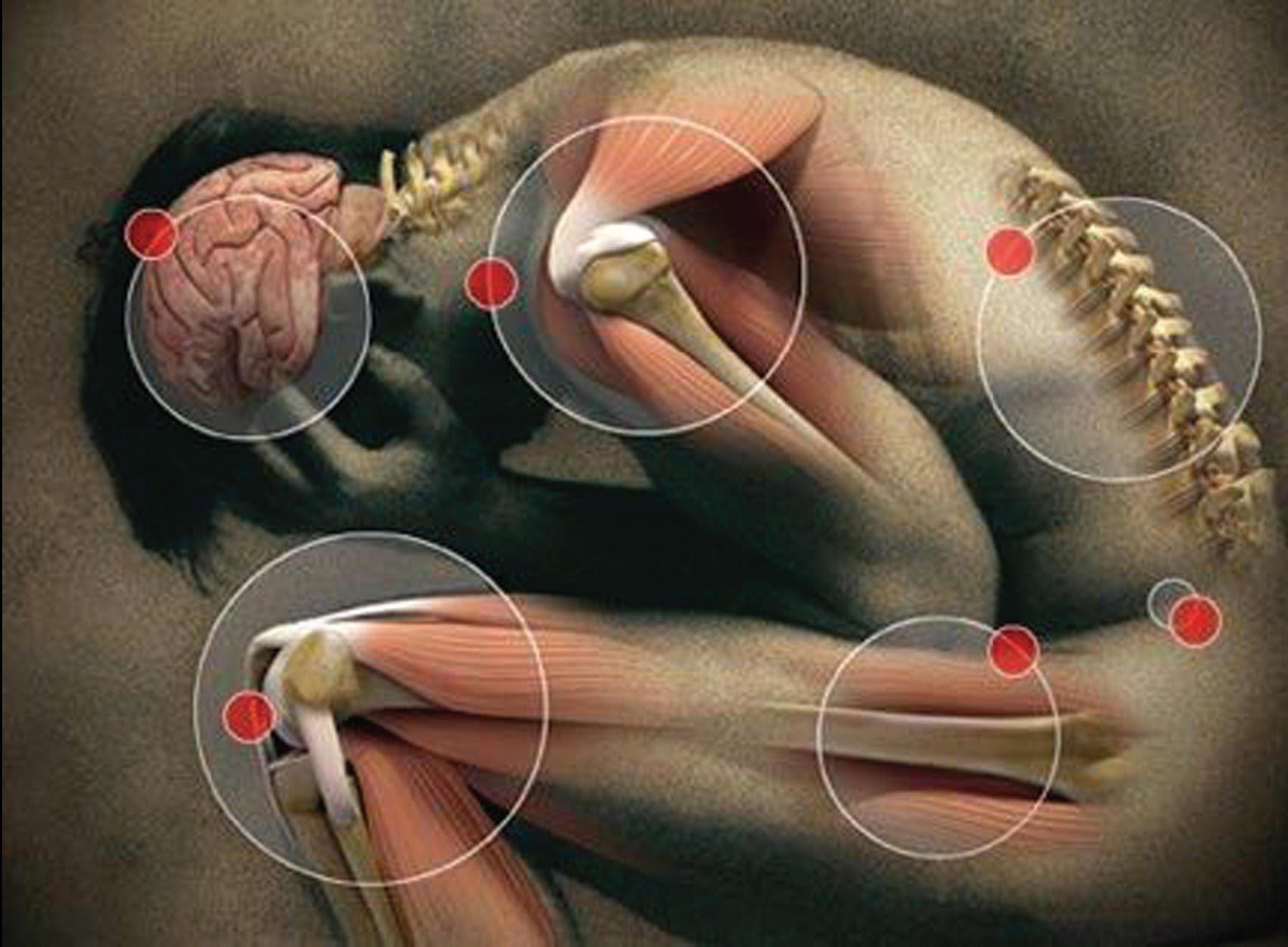 Как распознать и вылечить ревматизм суставов