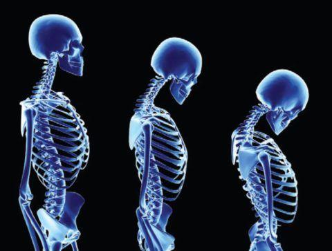 С возрастом увеличивается риск развития остеопороза