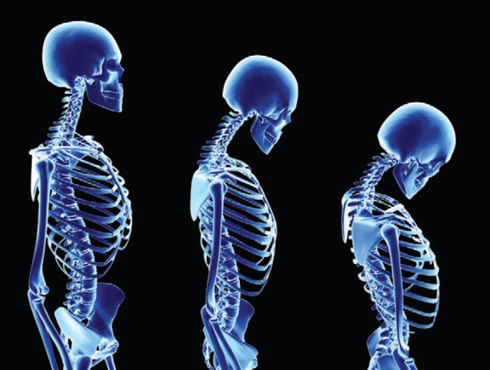 По каким причинам возникает остеопороз диффузный, его симптомы и лечение