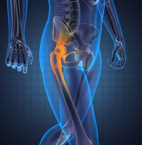 Синовит тазобедренного сустава лечение — Суставы