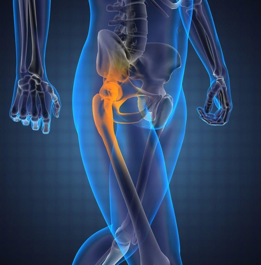 По каким причинам может развиться синовит тазобедренного сустава: симптомы и методы лечения