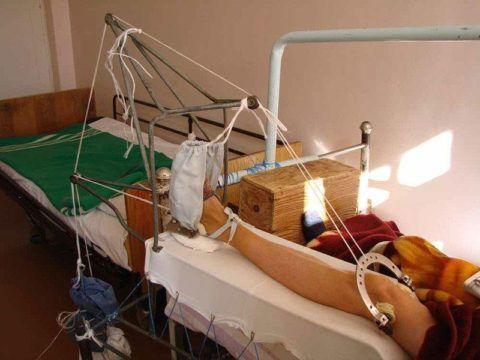 Скелетное вытяжение при переломе