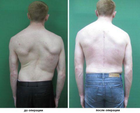 Сколиоз позвоночника: можно вылечить – фото до и после операции