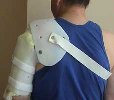 Тутор на плечо помогает восстановиться после травм.