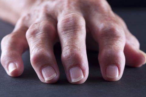 Узелки Гебердена сильно деформируют пальцы