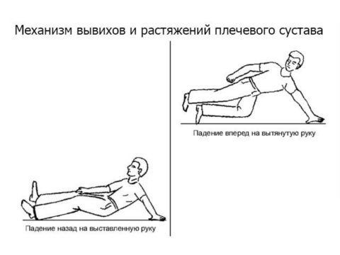 Воспаление плечевого сочленения может быть последствием травм.