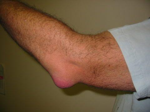 Воспаление суставов проявляется отеком и покраснением кожи в области патологии