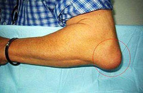 Болезнь характеризуется болью, отеком, покраснением и уплотнением тканей локтя.