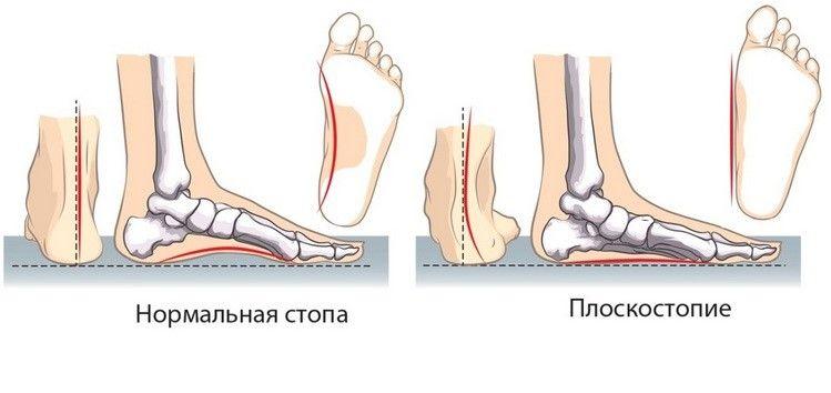 Отличие нормальной стопы от измененной при плоскостопии