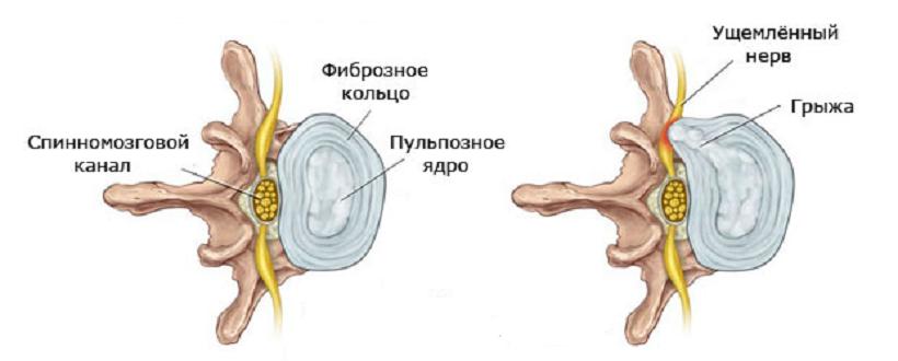 На рисунке: слева – здоровый межпозвонковый диск; справа – разрыв и одностороннее выпячивание пульпозного ядра