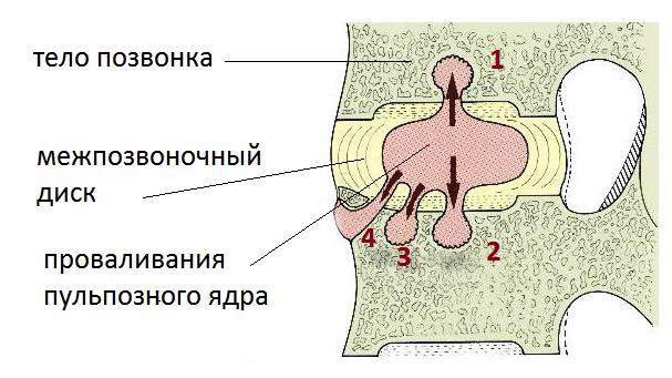 На рисунке – интракорпоральные повреждения