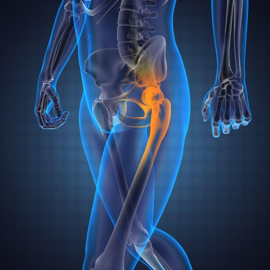 Почему возникает боль в тазобедренном суставе при ходьбе и опасно ли это?
