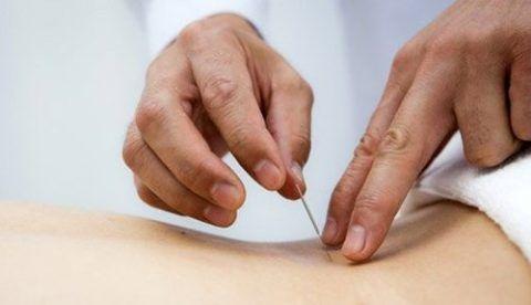 Иглотерапия является действенным физиотерапевтическим методом лечения грыж