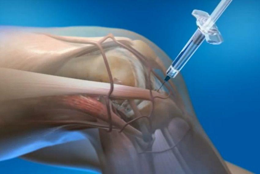 Уколы для суставов – какие группы препаратов для этого используют?