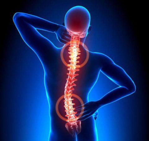 Как проявляются симптомы остеохондроза