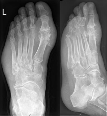 Причины и лечение болезни определяются после проведения рентгенологического исследования