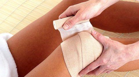 Компресс на сустав фиксируют тканью или заматывают не туго эластичным бинтом.