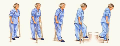 Костыли помогают «беречь» прооперированную ногу на восстановительном этапе и избежать нежелательных осложнений.
