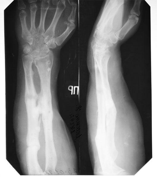 Почему образуется ложный сустав после перелома и как его лечить