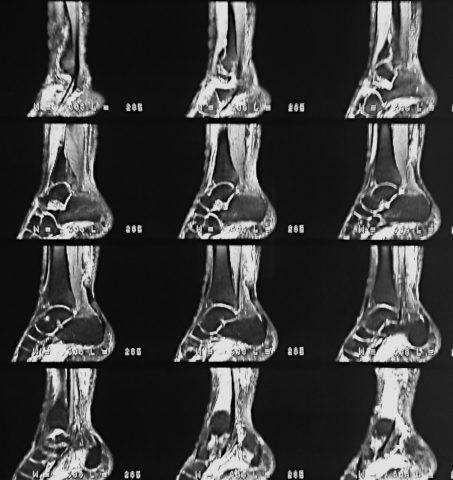 МРТ дает послойное изображение органа