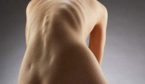 На фото – С-образное торако-люмбальное искривление позвоночника