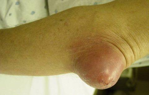 Бурсит локтевого сустава: симптомы и лечение. Диагностика и профилактика заболеванияБурсит локтевого сустава симптомы и лечение