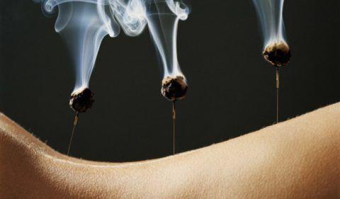 На фото показан принцип лечения цзю-терапией