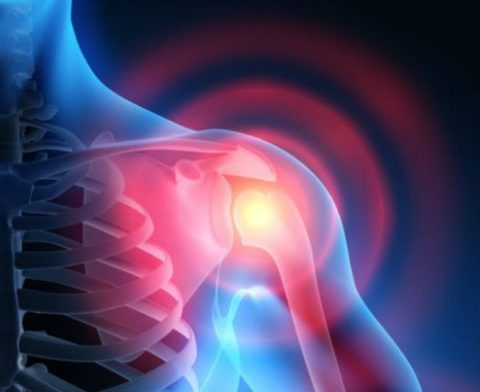 Каменный бурсит плечевого сустава рентген