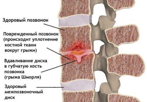 На рисунке показан центральный узелок с проваливанием вниз
