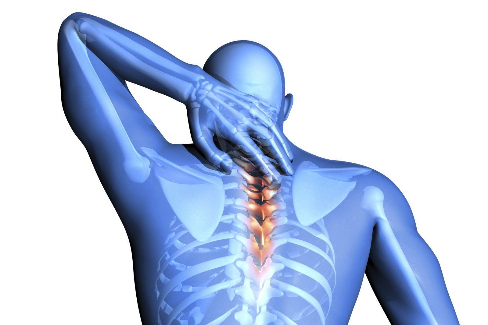Невралгия шейного отдела: симптомы и способы лечения заболевания