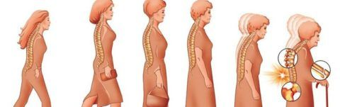 Остеопороз что такое остеопороз