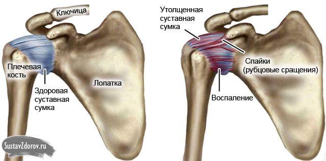 Периартрит плечевого сустава: особенности патологии