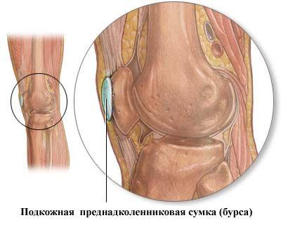 """Подкожная преднадколенниковая сумка с локализацией """"гусиного бурсита"""" на внутренней поверхности колена"""