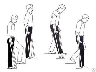 Подниматься и спускаться по лестнице в восстановительный период на колене надо с осторожностью.
