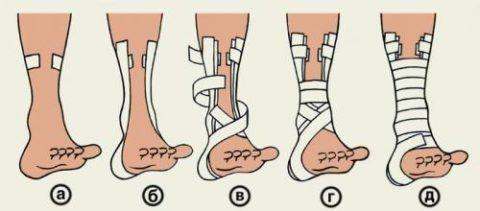 Поэтапная схема накладывания повязки на голеностоп