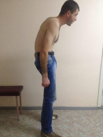 «Поза просителя» - характерный симптом болезни Бехтерева на поздней стадии