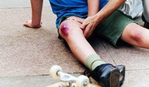 При любых повреждениях кожи на сочленениях, смесь лед + соль – противопоказана.